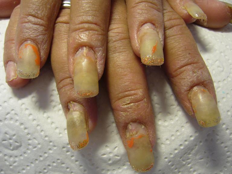 Некрасивые ногти на руках что делать фото