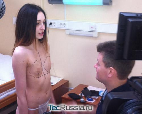 увеличение и подтяжка груди фото