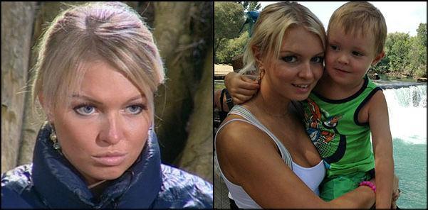 маша бухун до и после пластики фото