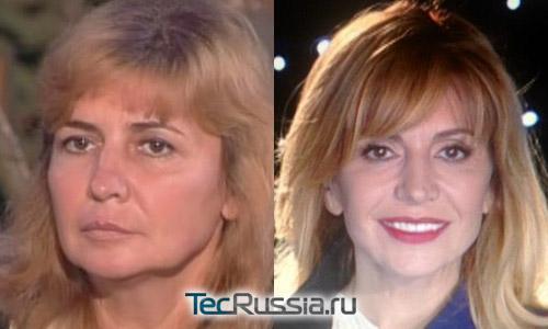 Ирина Агибалова жалеет о пластической операции | StarHit.ru
