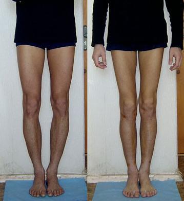 фото кривиг ніг