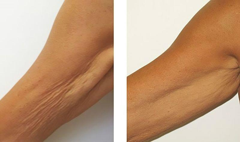 Как сделать кожу на теле упругой и подтянутой в домашних условиях