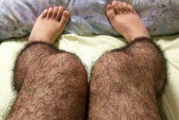 Что делать девушкам с волосатыми ногами