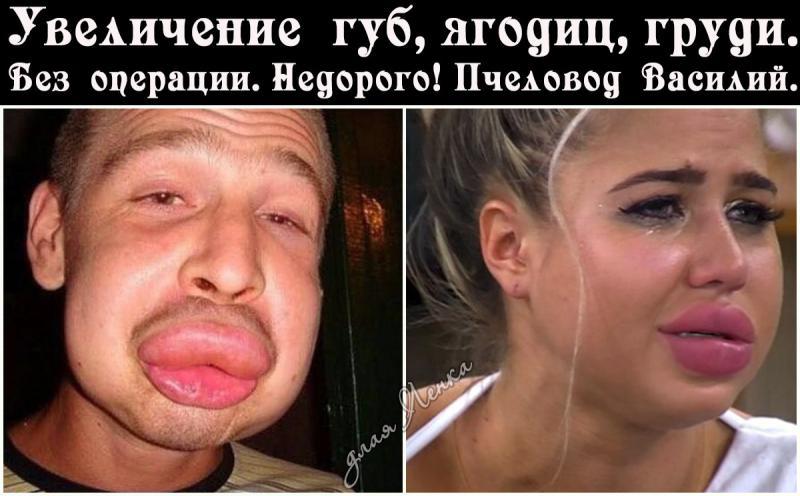 Операция по увеличению губ до и после